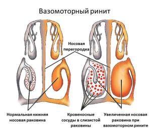 Схематическое изображение вазомоторного ринита