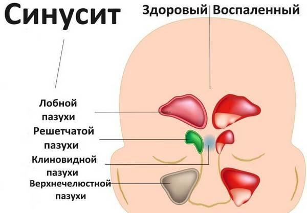 Схематическое изображение всех форм синусита