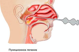 Схема прокола при синусите