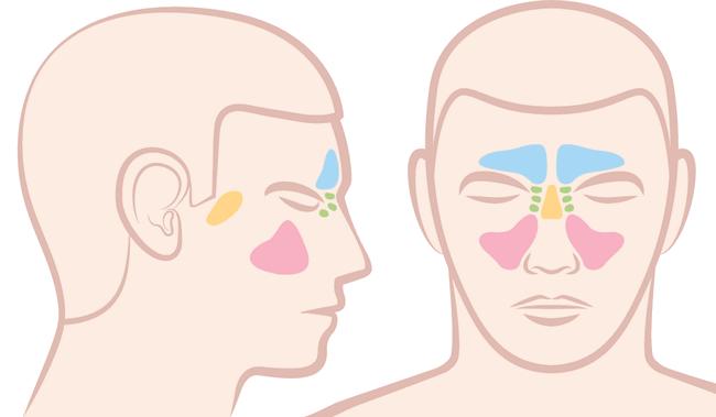 Схема двухстороннего синусита