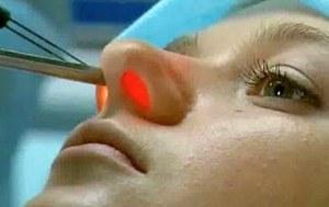 Физиотерапевтически процедуры при лечении заболеваний носовой полости