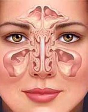Придаточные пазухи носа и скопившаяся в них жидкость при риносинусопатии