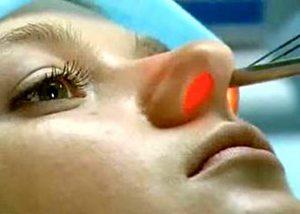Проведение лазеротерапии носовой полости
