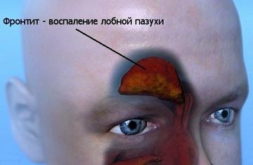 Воспаление лобной придаточной пазухи