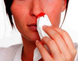 Почему у беременной идет из носа кровь