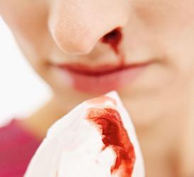 Кроотечение из носа при беременности