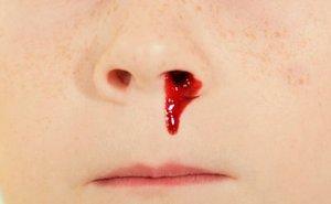 Почему из носа идет кровь